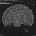 ctscan_brain_coral_1.png